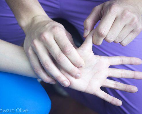 tratamiento para el dedo en resorte en IMTRA