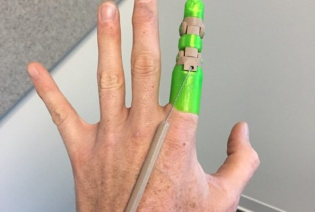 Dedo impreso en 3D