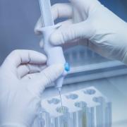 Tratamiento con factores de crecimiento con plasma de paciente