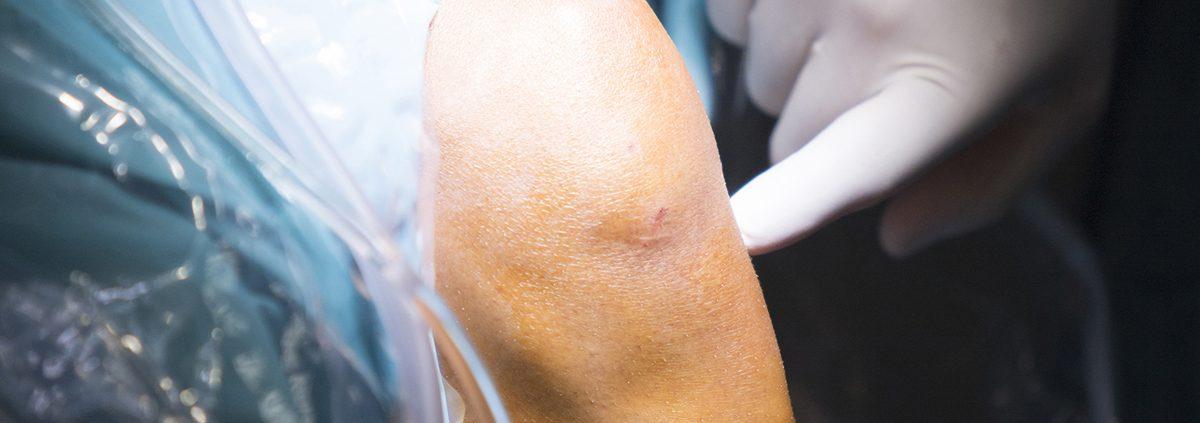 artroscopia de rodilla en IMTRA