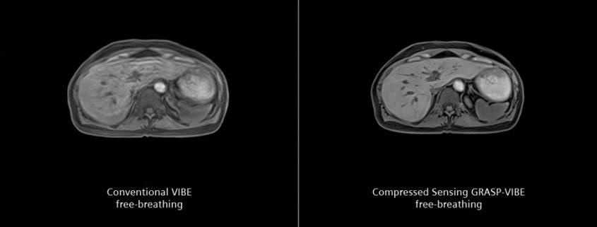 siemens-mri-compressed-sensing