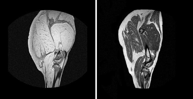 Imágenes de un jamón fresco y curado obtenidas con tecnología MRI. / TECAL-GIM (UEx)