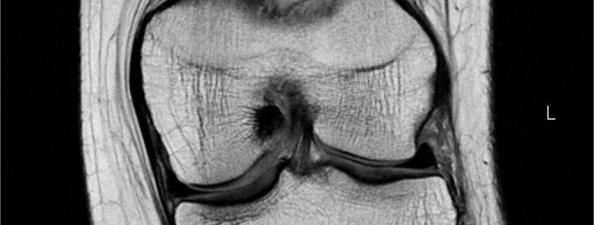 l.knee-coronal