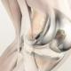 protesis rodilla